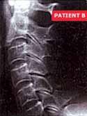 patient B.